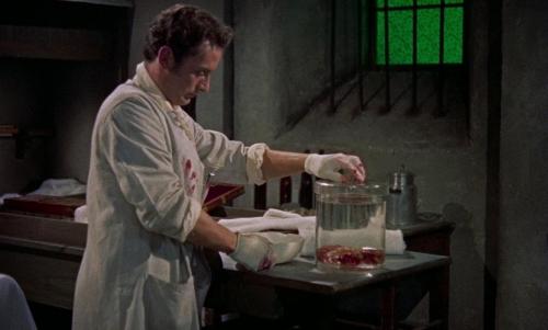 Revenge of Frankenstein 051